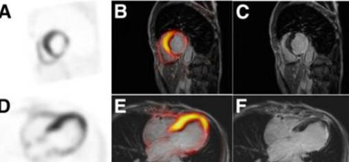 一体化PET/MR的心脏学研究