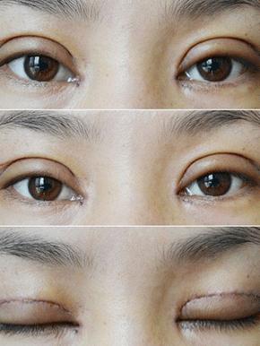 割双眼皮加开眼角恢复过程图