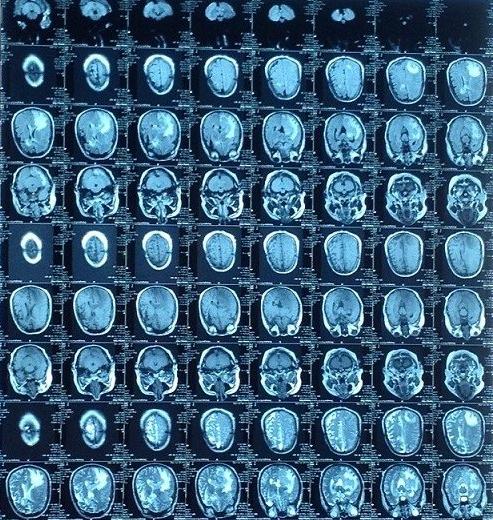 瑞普达治疗肺癌和肝癌案例集
