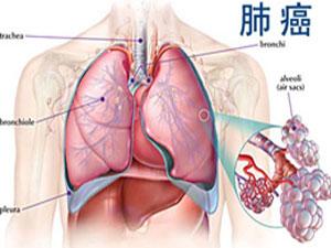 肺癌晚期可以治愈吗