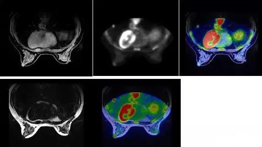 PET/MR在乳腺癌应用前景广大