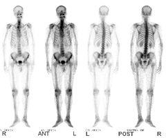 以PET-MR研究核医学的发展