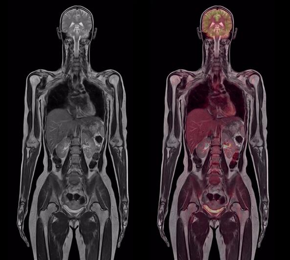 PET/MR真正全身精细扫描体检