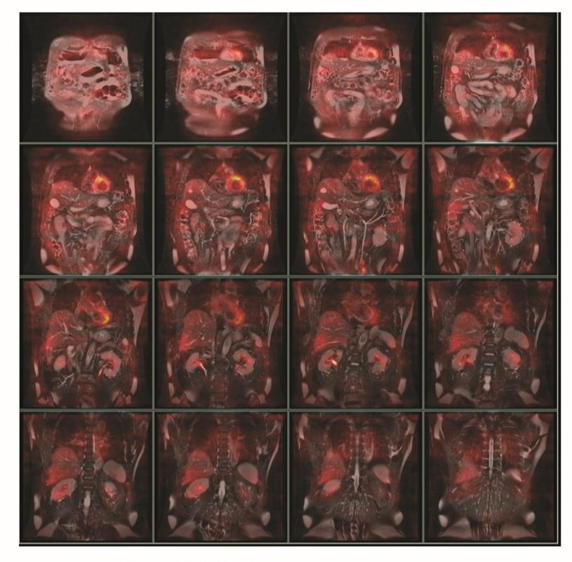 PET-MR能清晰显示脏器组织