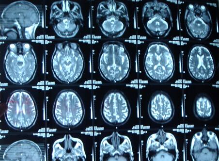 MR成像在腹膜后肿瘤诊断中的意义