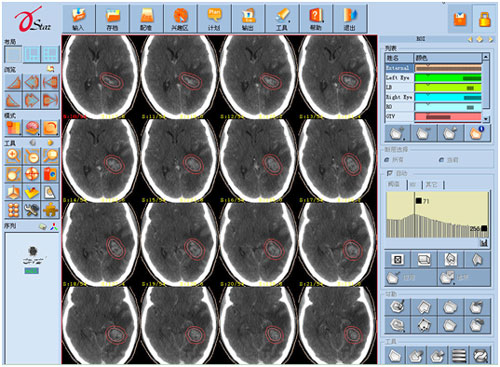 陀螺刀治疗左侧颞叶脑胶质瘤