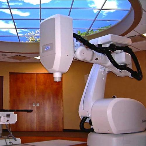 射波刀放射治疗系统的特点