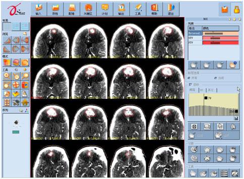 鼻咽癌引发脑膜瘤怎么放疗