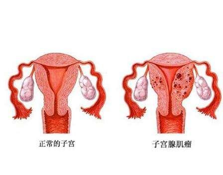 子宫肌瘤检查