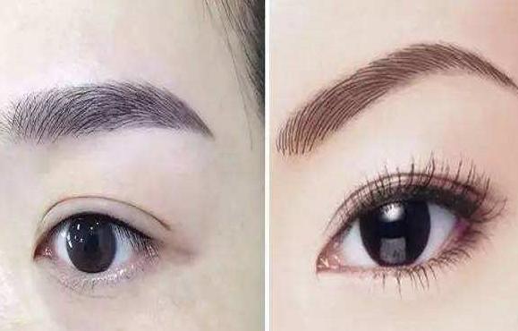 做切眉术具有哪些优势
