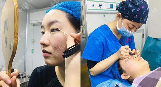 在长沙雅美做完双眼皮,第二天就上班了