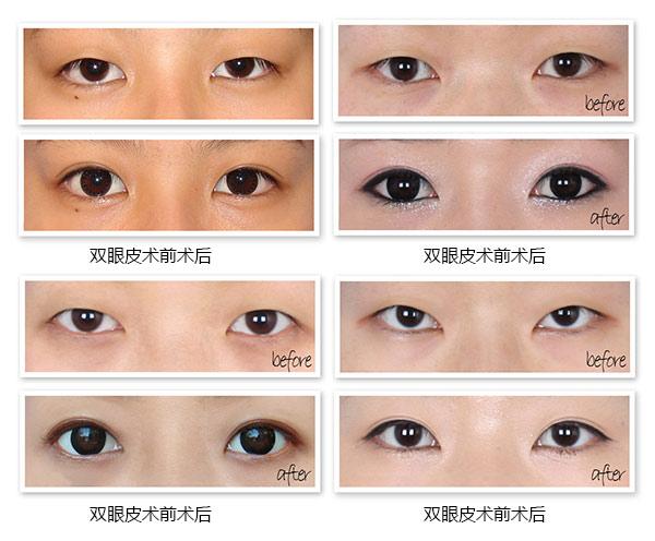 双眼皮手术的指南大全以下图片