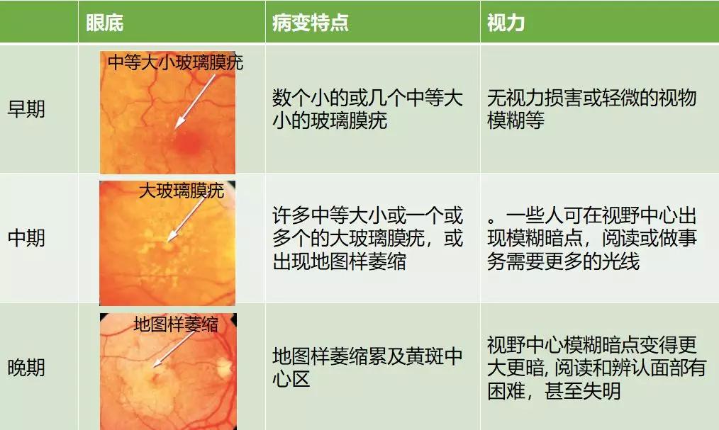 黄斑变性分类