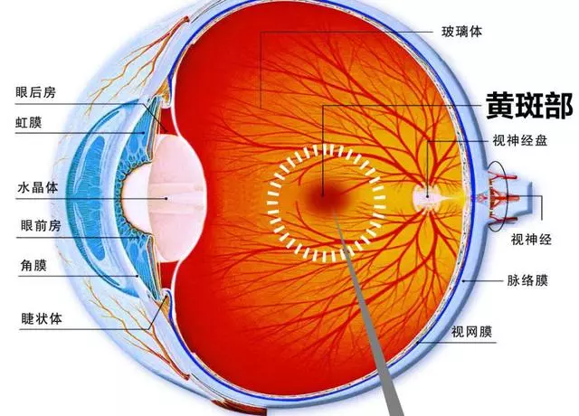 视网膜脱落病理