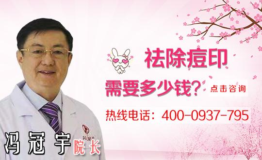 泰安东平县第一人民医院去痘印最有效的方法