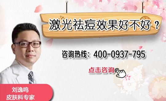 广州458医院整形激光祛痘好处有哪些
