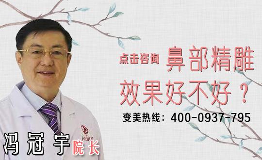 西安诺颜医疗改善蒜头鼻常见方法