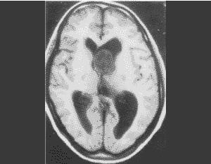 微创治疗室管膜瘤的方法