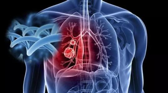 肺癌患者的日常护理有什么