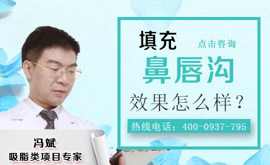 鼻唇沟注射填充治疗方法