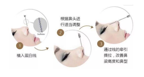 线雕隆鼻存在哪些影响?做完线雕鼻要多久能化妆