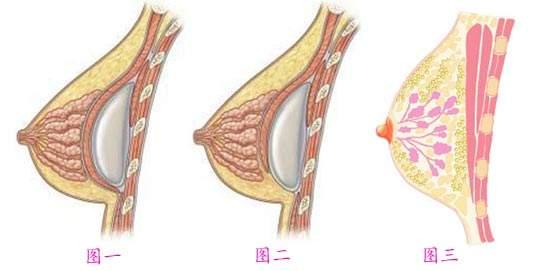 丰胸整形是怎么收费标准的?假体隆胸优势