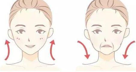 面部提升除皱是什么?面部提升术的效果好么?