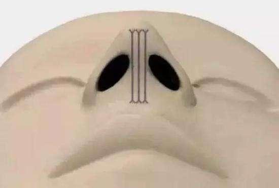 MISKO埋线隆鼻有哪些优点?