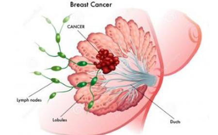 乳腺癌的早期4大症状