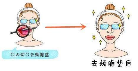去颊脂垫术术后的常见问题有什么?
