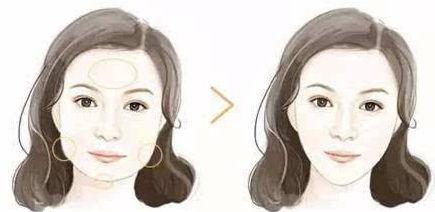 磨骨瘦脸多少钱?价格有哪些影响因素?
