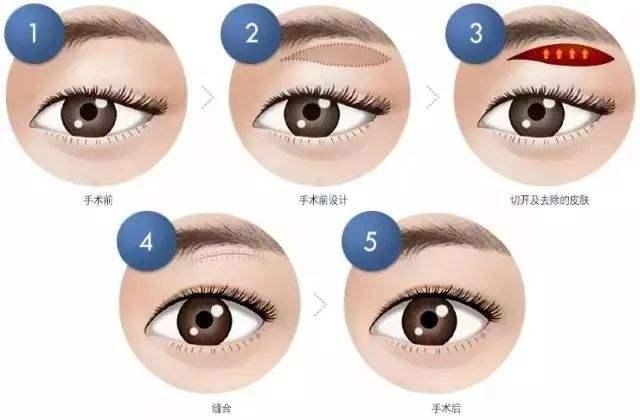眉毛移植手术可以改变眉形吗?