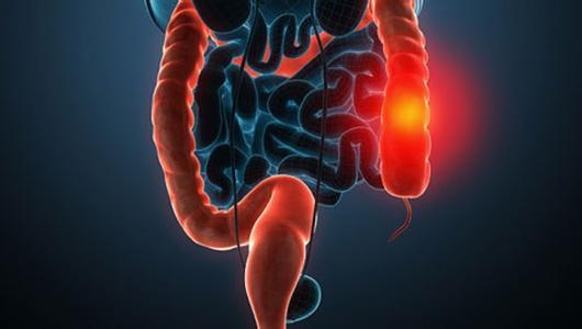 结肠癌晚期有什么症状