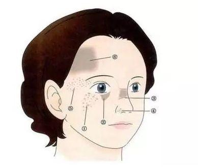 激光祛斑术