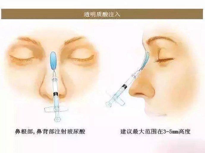 玻尿酸垫鼻子