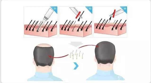 头发种植后头发生长全过程