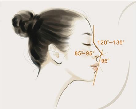 做埋线隆鼻的效果怎么样?会失败吗