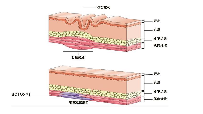 注射玻尿酸除皱效果怎么样?