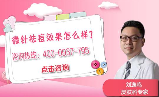 西安女子医院水杨酸对于痘印效果如何?