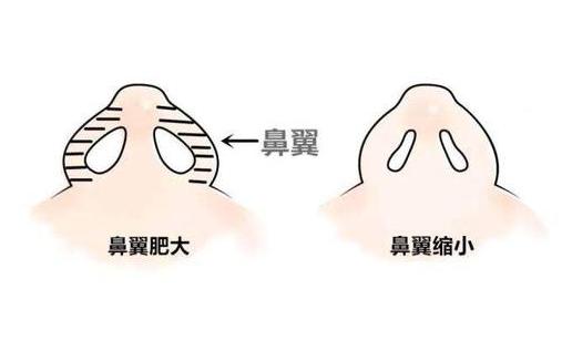 鼻翼缩小术修复后要多久才能恢复