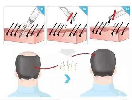 头发种植可以用别人的毛囊吗
