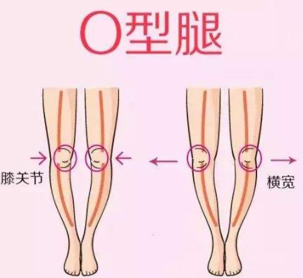 腿型不好看怎么办?O型腿怎么修复