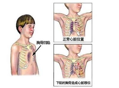 漏斗胸术后如何保健?