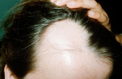 脂溢性脱发的原因?