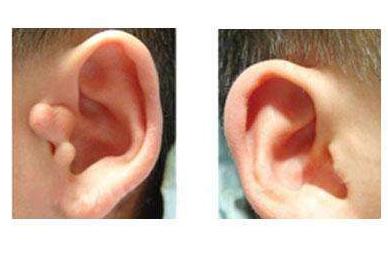 附耳切除术前术前准备