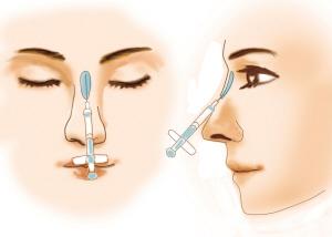 北京植信诺德医疗鼻基底可以用假体吗?