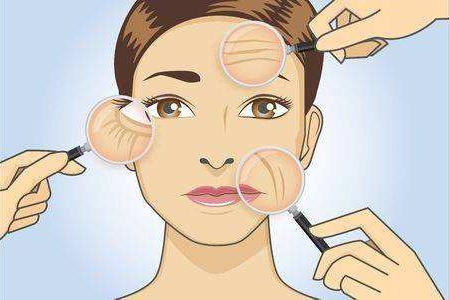 面颊部除皱术有哪些