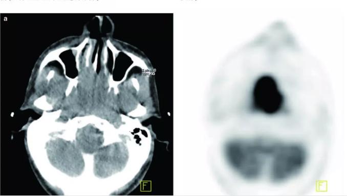 鼻咽癌petct显像1