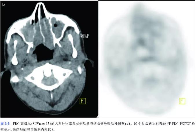鼻咽癌pet-ct显像2