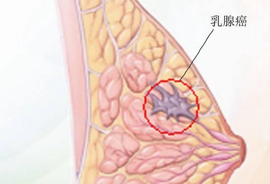 乳腺癌常识 女性的危险